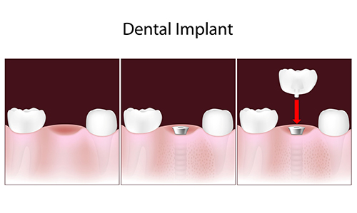 Dental Implants in East Brunswick